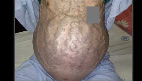 image   week prominent tortuous abdominal veins
