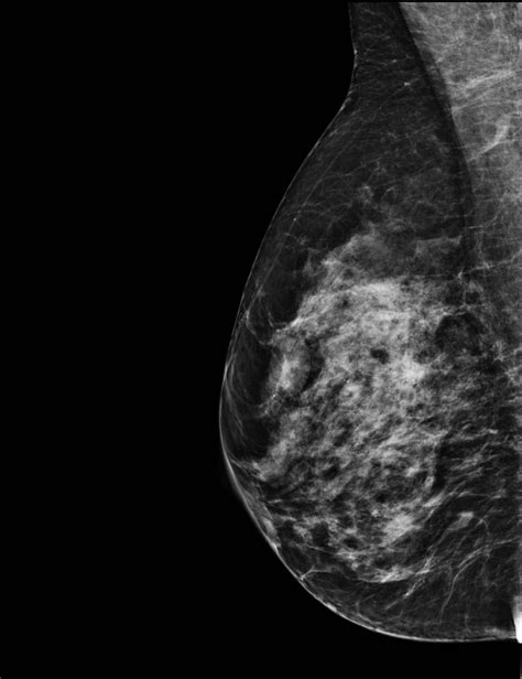 Dense breast tissue troubles with mammograms and breast jpg 2560x3328