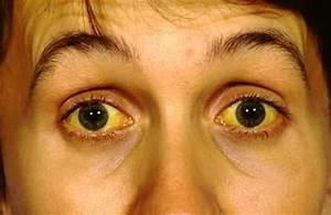 Hepatitis – An Infection Gone Viral - AskDrMarisela.com  Hepatitis Infections