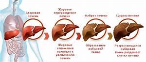 Препараты для печени гепа мерц