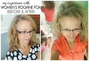 Women U0026 39 S Hair Loss  And My Experience With Rogaine U00ae Foam