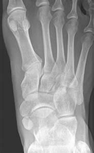 Tarsal Bones; Ankle Bones; Cuboid Bone; Cuneiform Bones ...