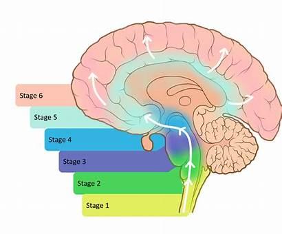 Parkinson Disease Hypothesis Braak Prion Brain Affected