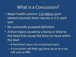 Concussions. - ppt video online download