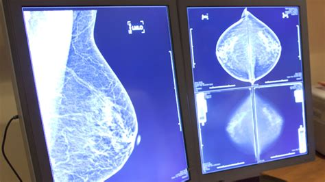 What You Need To Know About Breast Tissue Density