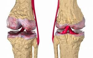 Лечение артроза суставов аюрведа