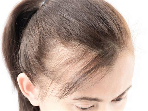toronto hair transplant clinic    genes affect