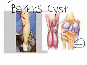baker s cyst as related to cysts pictures