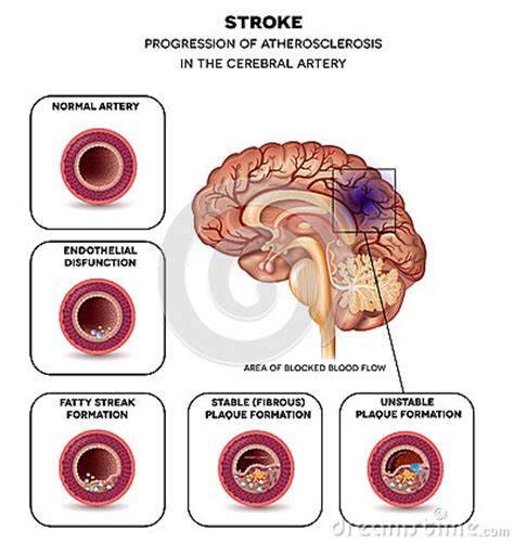 Stroke In The Brain Artery Stock Vector  Image 60600868. Conference Call Signs. C_id 15047769&destination_id Signs Of Stroke. Laundry Signs. Non Potable Water Signs Of Stroke. Eating Signs. Overheating Signs Of Stroke. Diabetic Coma Signs Of Stroke. First Day School Signs Of Stroke