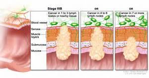 ... colon and rectum. Results of a ten-year experience. Dis Colon Rectum Colorectal Cancer