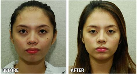 Rhinoplasty Philippines By Dr. Raynald Torres Gainesville Plastic Surgery Mattress And Box Spring Covers Coating Metal With Doll Faces Floor Grating How To Make Acrylic Cost Of In Korea 8 Mil