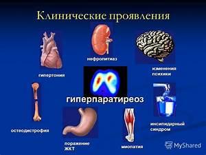 Повышенное давление лечение какие таблетки