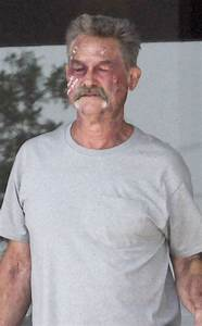 Why Is Kurt Russell's Face Covered With Cuts and Bruises ...  Kurt