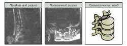 Лечение шейного остеохондроза стволовыми клетками