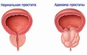 Аденома предстательной железы у мужчин причины и лечение