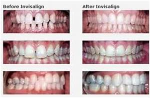 INVISALIGN BRACES, MAKING THE COST AFFORDABLE FOR SMALL ...