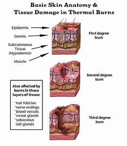 Learn The Burn   A Guide To Skin Burns