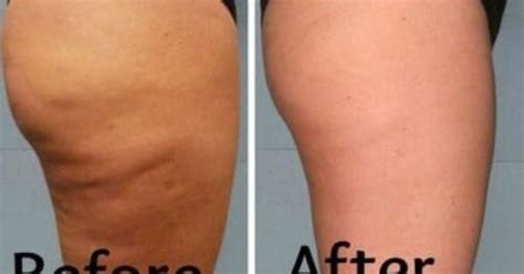 This is the most promising and high impact coffee scrub which would never fail to show results quickly! DIY Best Cellulite Scrub That Work Fast In 2 Days! With most Powerful Effective Ingredients ...