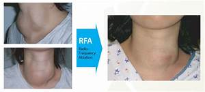 Thyroid No Surgery 2018  Endocrinologists Interested In Thyroid Ablation For Their Patients Need