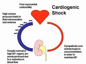 Changes That Occur In Cardiogenic Shock