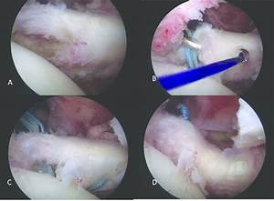 Step By Step Technique Of Repair Of Interstitial Tear Of