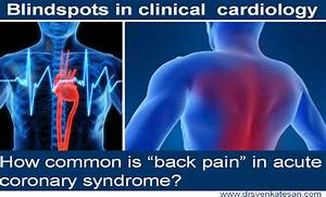 Don U2019t Ignore Back Pain In Emergency Rooms And Coronary