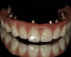 Dental Implant Fixed Hybrid Denture