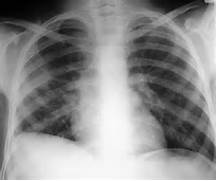 case  Lateralisation of the diaphragmatic apex - subpulmonic effusion  Pleural Effusion X Ray Lateral