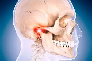 Jaw Joints Problems     Manuel Terapi