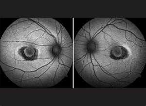Hydroxychloroquine retinopathy: A review of imaging Pandya ...