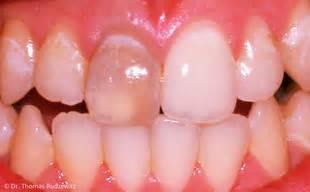 bleaching zahnaufhellung zahnarzt wetzlar juergen werner
