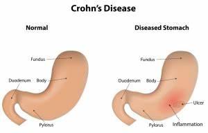 Treatment For Crohn's Disease - Net Health Book