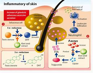 What is rosacea skin condition