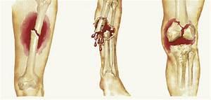 Pain Management Options For Bone Fractures  U00b7 Guardian