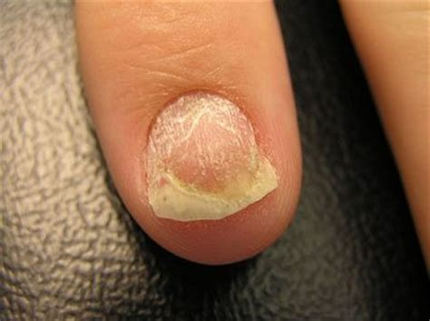 psoriasis   nails  nail  characterized  raw