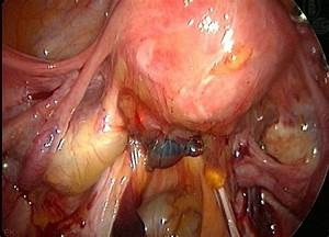 Endometriosis With Adhesions | End this endo | Pinterest
