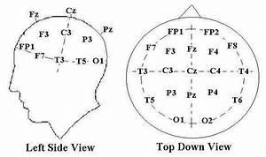 Ekg Hook Up Diagram