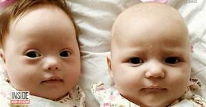 Rare Set of Twins Where Only One Baby Has Down Syndrome ...