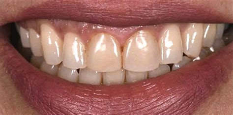 Your health insurance might cover dental veneers when it deems the procedure as medically necessary under a stricter definition: Transform Your Smile with Dental Veneers - Cheryl A. Siegel, DDS