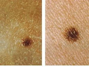 How To Check A Mole On Your Skin For Skin Cancer ...