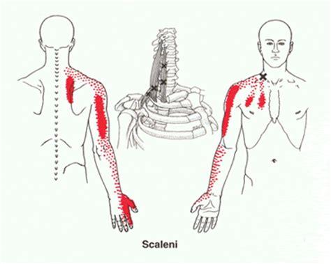 Slijmbeursontsteking schouder oefeningen