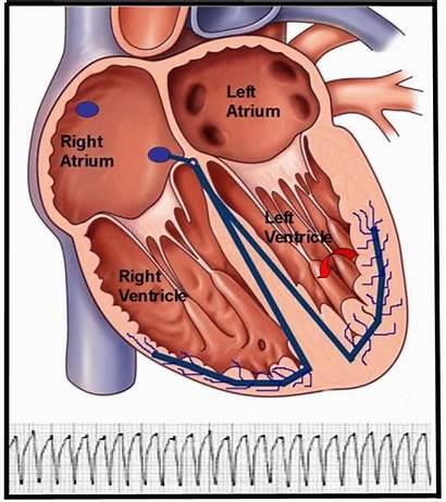 Vt Monomorphic Ventricular Tachyarrhythmias Ekg Myocardial Animation