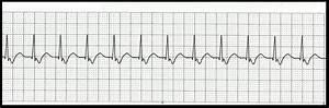 Float Nurse: Characteristics of Junctional Rhythms