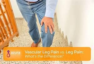 Vascular Leg Pain Vs  Leg Pain  What U0026 39 S The Difference