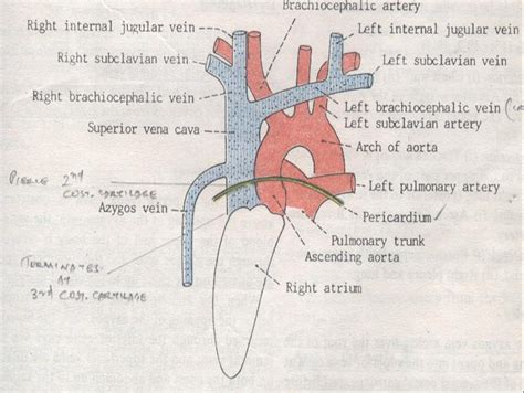 Left Innominate Vein Anatomy