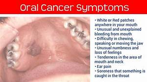 Oral cancer symptoms | Health and Fitness