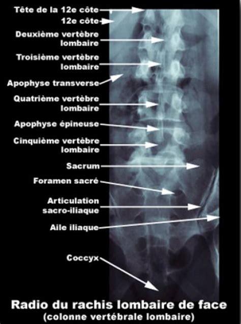 scanner de bureau image photo colonne vertébrale de radiographie