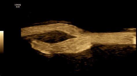 logiq  ultrasound system ge healthcare
