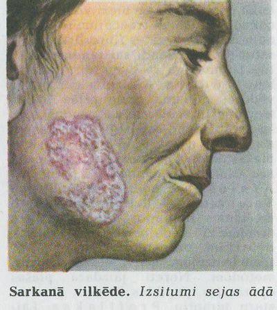 SARKANĀ VILKĒDE | Medicīnas termins