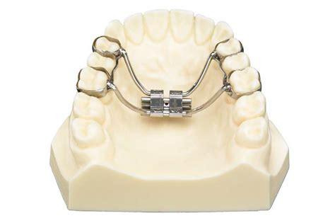 Mcnamara Expander With Occlusal Guide